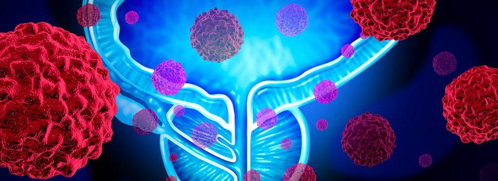 Imagem representa câncer de próstata